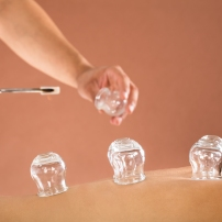 Close-up Of A Therapist Hand Giving Cupping Treatment To Person In Beauty Spa