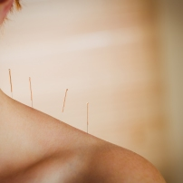 Young woman getting acupuncture treatment in therapy room